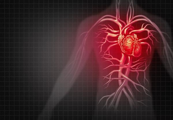 cardiovasculardisease