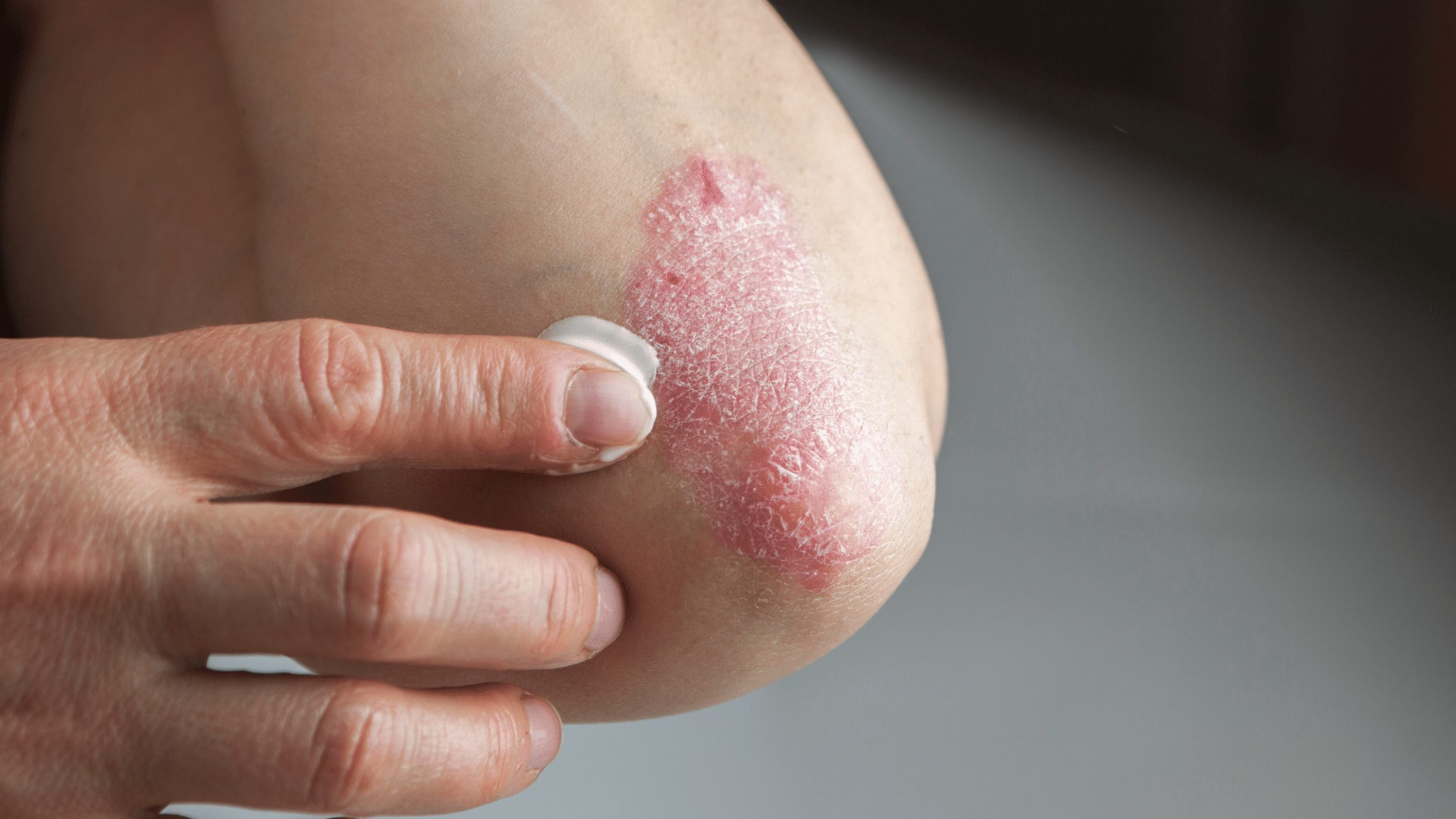 Person's elbow with psoriasis applying ointment